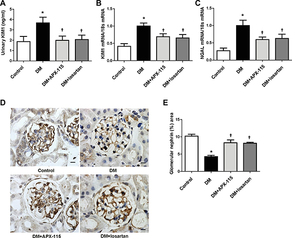 Effect of APX-115 on tubular and podocyte injury in STZ-induced diabetic mice.