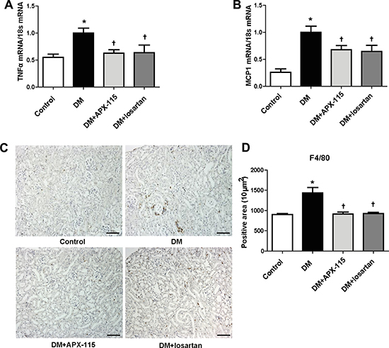 Effect of APX-115 on inflammation in STZ-induced diabetic mice.
