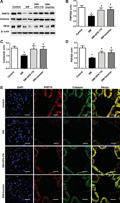 Effect of APX-115 on peroxisomal biogenesis in STZ-induced diabetic mice.