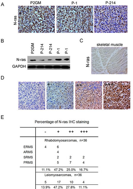 Figure 6:Up-regulation of N-ras in xenograft tumors and primary human RMS tumors.