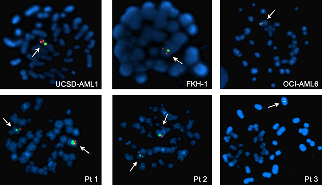 Metaphase FISH analysis of AML cell lines with -7 (upper panel) and AML patients (lower panel).