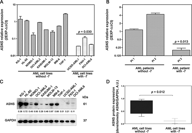 Gene and protein expression of ASNS in AML samples.