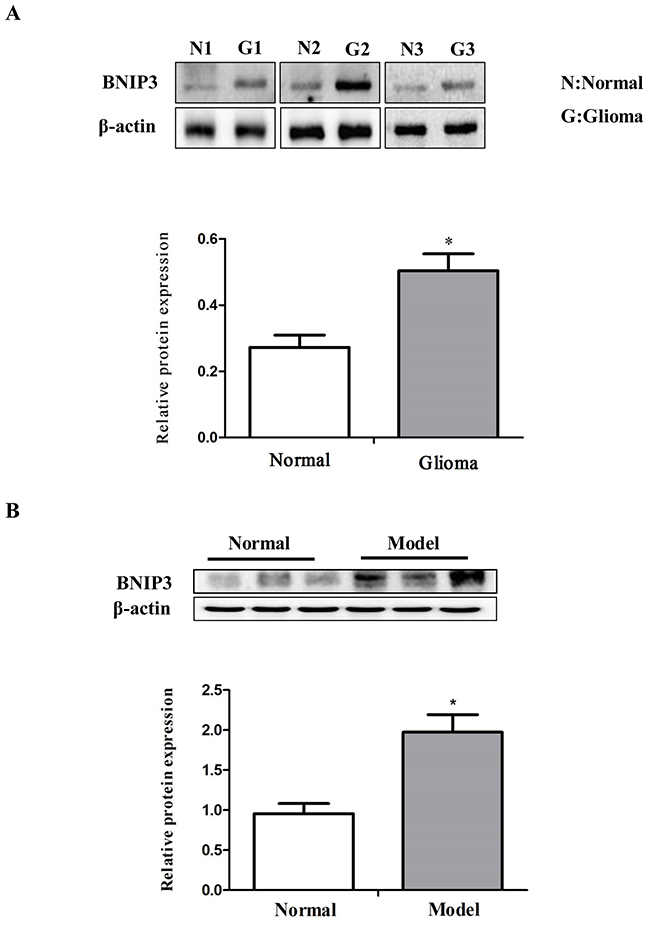 Down-regulation of miR-145 and up-regulation of BNIP3 expression in gliomas.