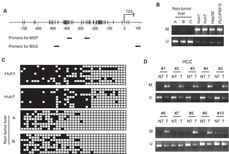 Hypermethylation of the GLS2 promoter in HCC cells and primary HCCs.