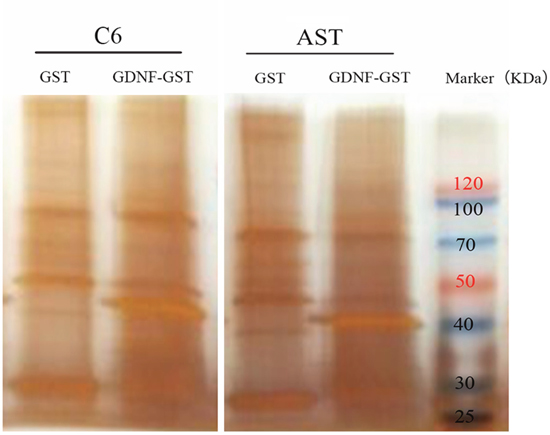 GST pull-down assay to identify membrane proteins binding to GDNF.