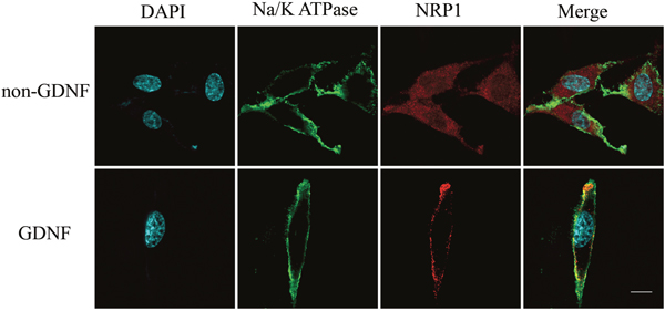 Immunofluorescence analysis showing membrane recruitment of NRP1 by exogenous GDNF in C6 glioma cells.