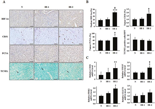 Expression of a cell-proliferation marker, endothelial cell markers, and hypoxia-response transcription factor in tumor tissues from mice subjected to normoxia (N), intermittent hypoxia-1 (IH-1), or intermittent hypoxia-2 (IH-2) conditions.