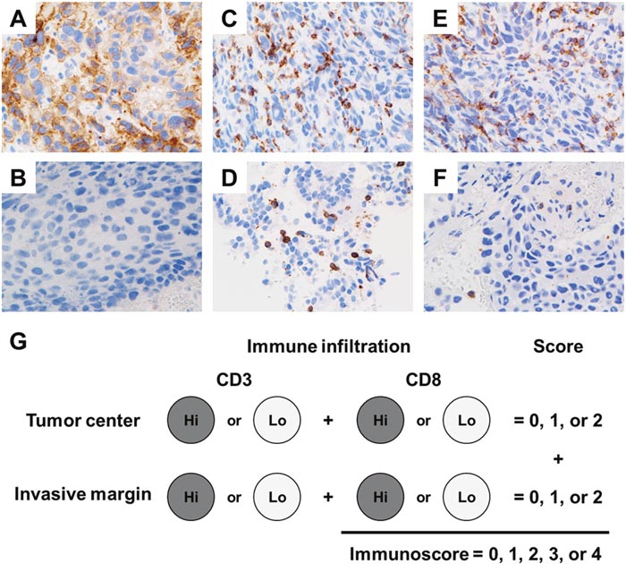 Representative programmed cell death-ligand 1 (PD-L1) and tumor-infiltrating lymphocytes (TIL) staining patterns in the tumor specimens.