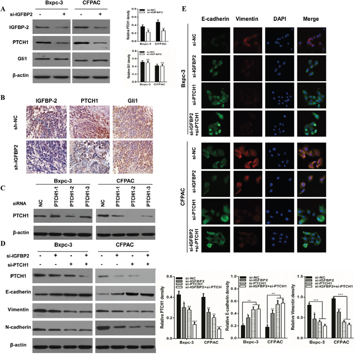Knockdown of IGFBP-2 attenuates EMT through the Hedgehog pathway by suppressing PTCH1.