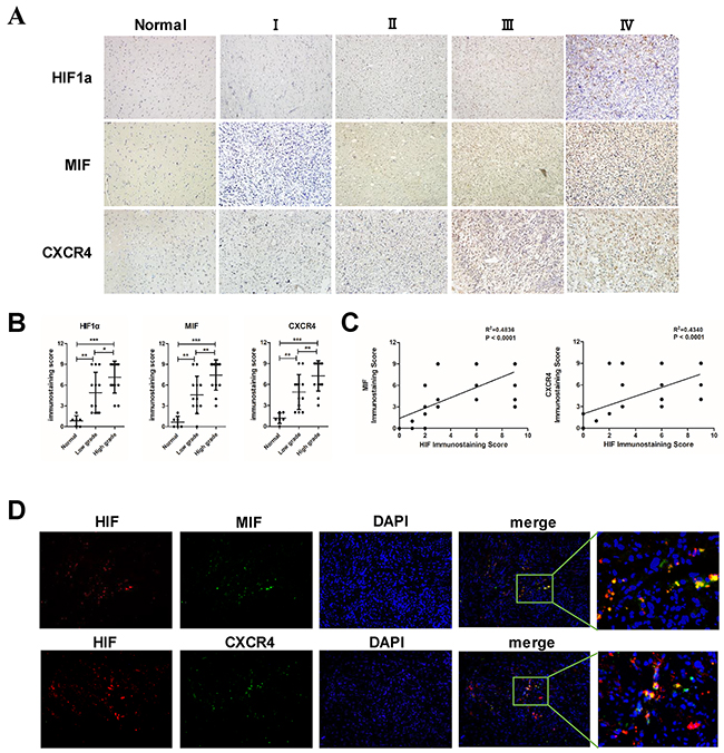 The expression of MIF and CXCR4 is positively correlated with HIF1α in glioma tissues.