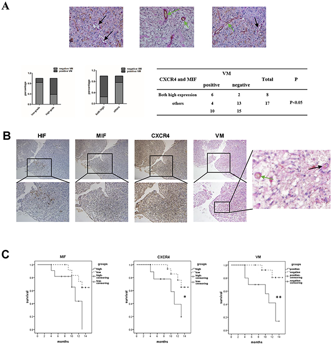 VM formation is correlated with the high co-expression of MIF and CXCR4 in glioma tissues.