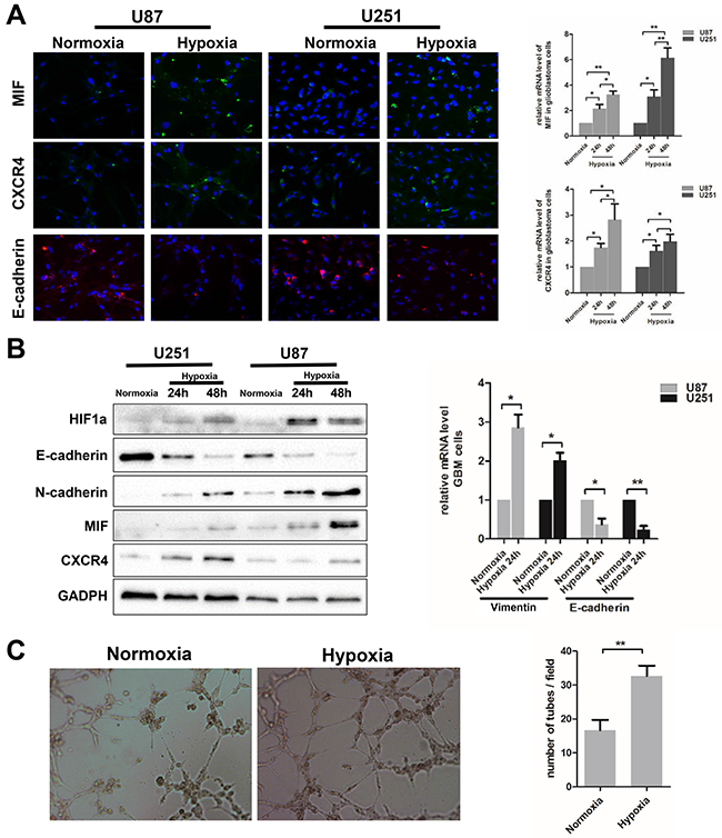 Hypoxia induces EMT and VM formation in glioblastoma cells.