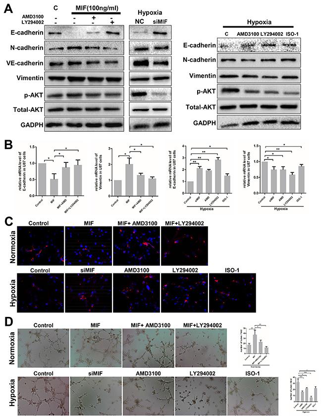 Hypoxia induces VM formation through the MIF-CXCR4-AKT-EMT pathway in glioblastoma cells.