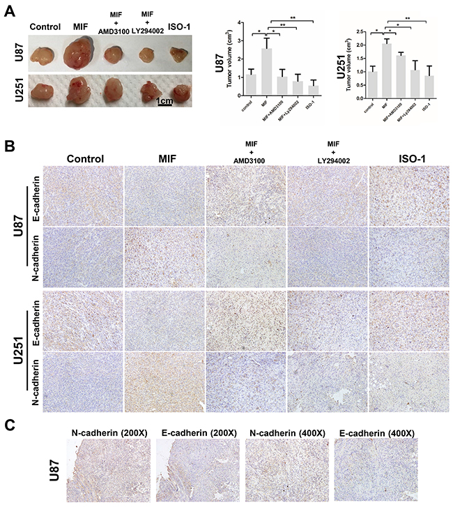 MIF promotes the EMT and VM formation by GBM cells in vivo.