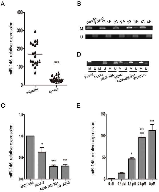 miR-145 is epigenetically downregulated in breast cancer clinical samples and cell lines.