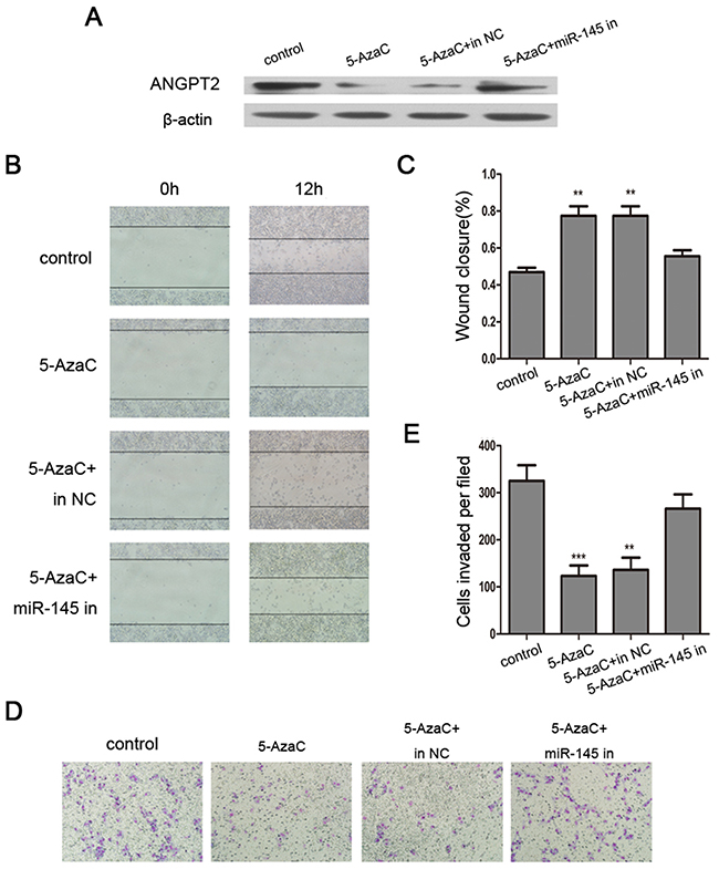 Reversing the effects of 5-AzaC by a miR-145 inhibitor in MDA-MB-231 cells.