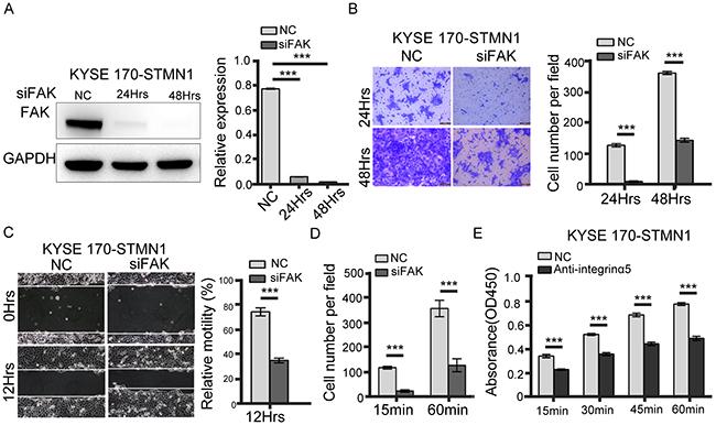 FAK knockdown inhibited metastasis of stathmin-overexpressing cells.
