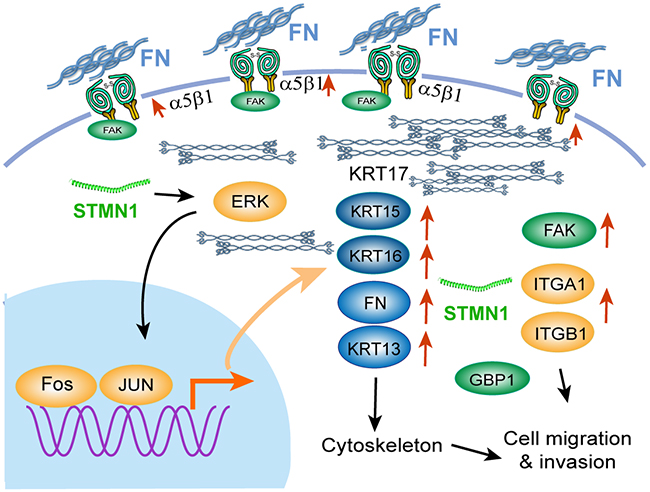 Illustration of the signaling pathway for ESCC cell migration induced by stathmin overexpression.
