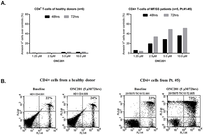 ONC201 selectively induces apoptosis in CD4+ malignant T cells.