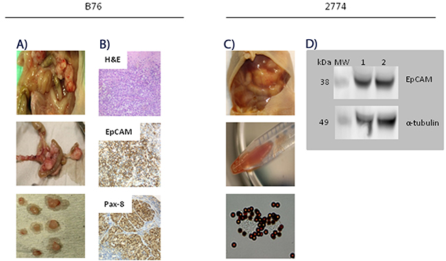 Characterization of peritoneal metastasis models of human epithelial ovarian carcinoma.