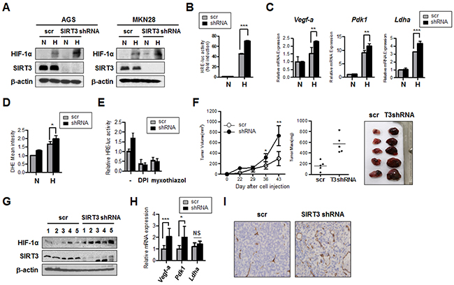 SIRT3 knockdown in gastric epithelial cells increases HIF-1α activity and induces tumor growth.