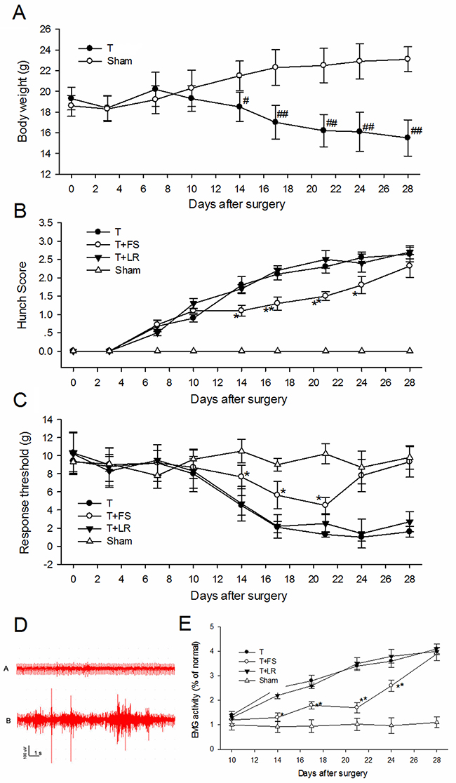 PAR-2 antagonist alleviated pancreatic cancer pain in nude mice.