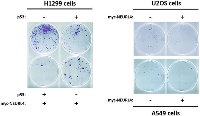 NEURL4 regulates cell growth.