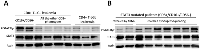 Western blot analysis of LGLs' extracts for phosphorylated STAT3, total STAT3 and Actin.