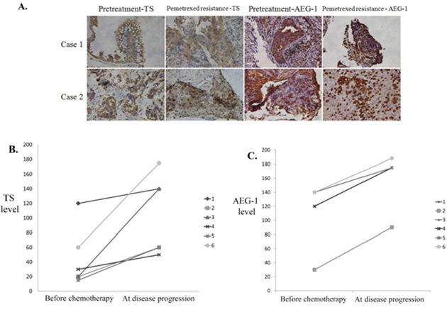 Increased expression of astrocyte-elevated gene-1 and thymidylate synthase after acquired pemetrexed resistance in lung adenocarcinoma.