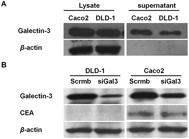 Galectin-3 and CEA expression in colon cancer cells.