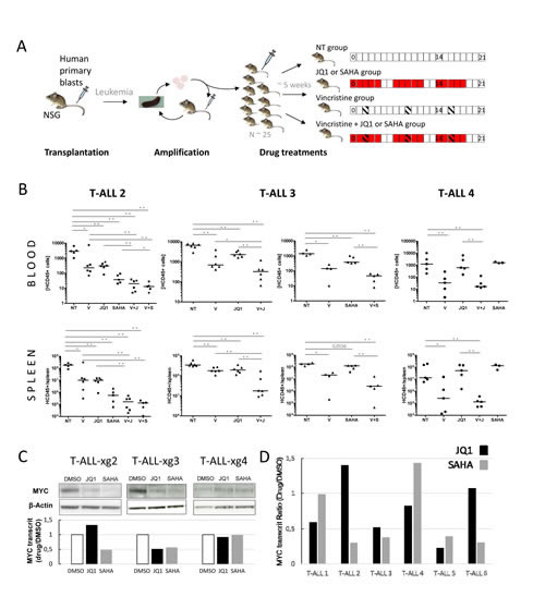 In vivo analysis of JQ1/SAHA efficiencies in xenografts of human primary T-ALL.