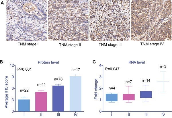 Validation of SRPK1 expression in gastric cancer tissues.
