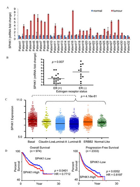 SPHK1 expression in breast tumors.