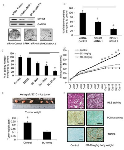 Inhibition of SPHK1 activity impairs colony formation and breast tumor formation by MDA-MB-231 cells in immunodeficient mice.