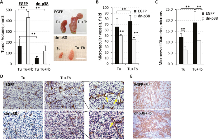 Fibroblast-enhanced tumor growth and vasculature depend on tumor p38MAPK.