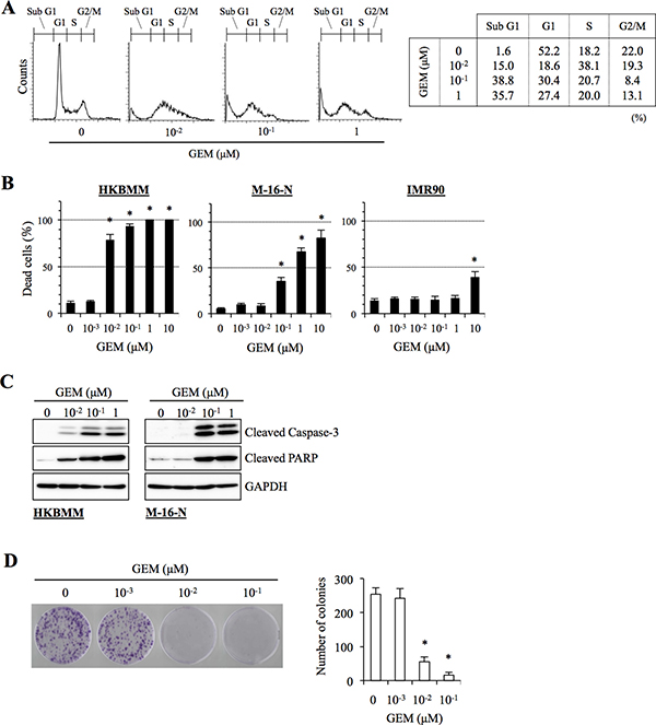 Anti-proliferative and pro-apoptotic activities of gemcitabine in high-grade meningioma cells.