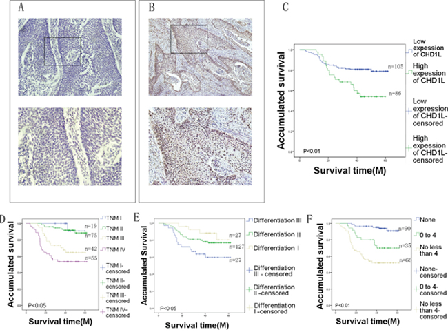 Immunohistochemical analysis of CHD1L in EC tissues.