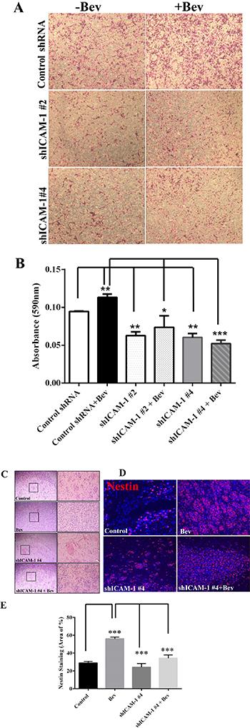 ICAM-1 knockdown suppresses cell invasion in vitro and in vivo.