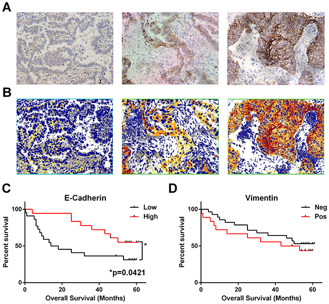 Loss of epithelial marker E-cadherin correlates with worse overall survival.