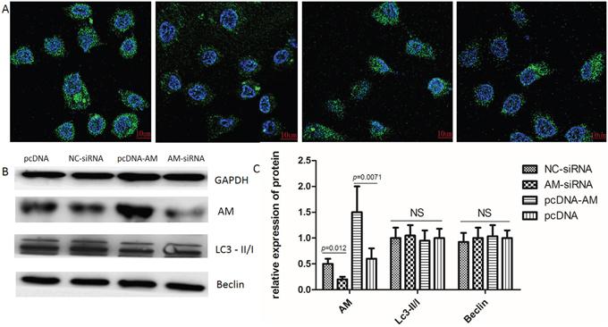 GFP-LC3 single fluorescent indicator autophagy.