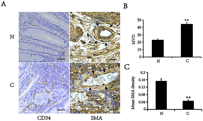 Expression of SMA and CD34 in colorectal cancer (C) and matched normal tissues (N).