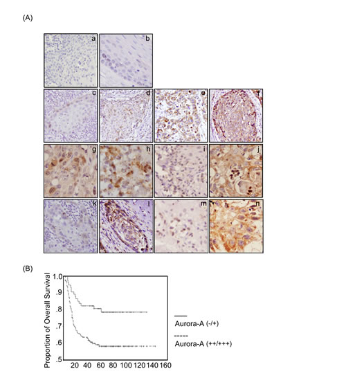 Figure 3:The expression of Aurora-A and its kinase activity are associated with poor prognosis in HNSCC patients by immunohistochemical staining.