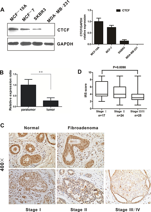 CTCF expression is downregulated in breast cancer tissues and cell lines.