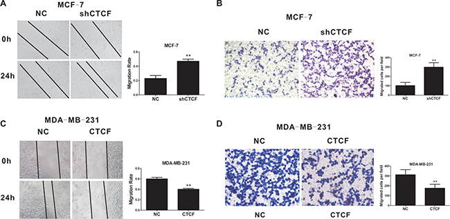 CTCF inhibits breast cancer cell migration and invasion.