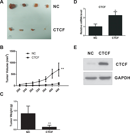 CTCF inhibits tumorigenicity of breast cancer cells in vivo.