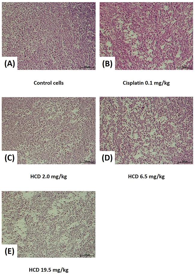 Histopathology of SAS xenograft tumor after treating with HCD and cisplatin.