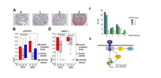 Fig 6: SIAH2 is a marker for SCC and correlates with pSTAT3-dependent MMP-1 expression.