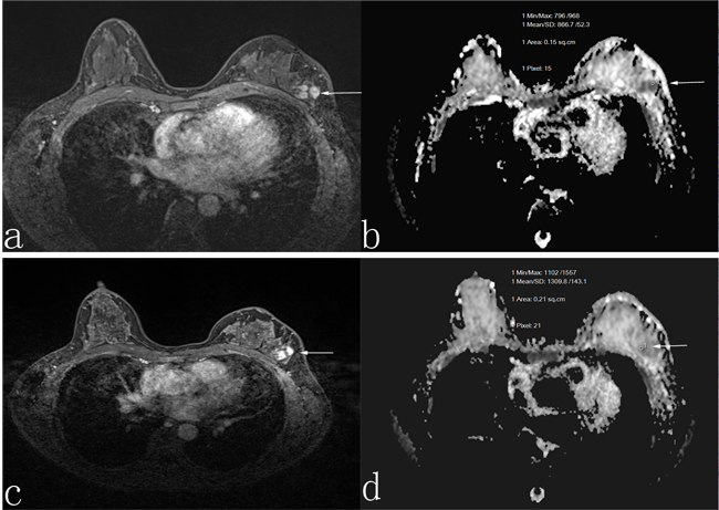 A 45-year-old woman who was non-responder with invasive ductal carcinoma.