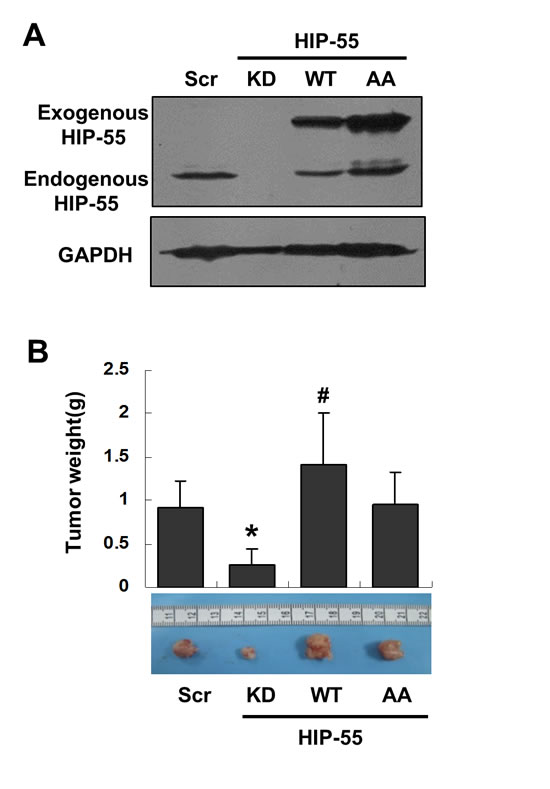 HIP-55 promotes tumor formation