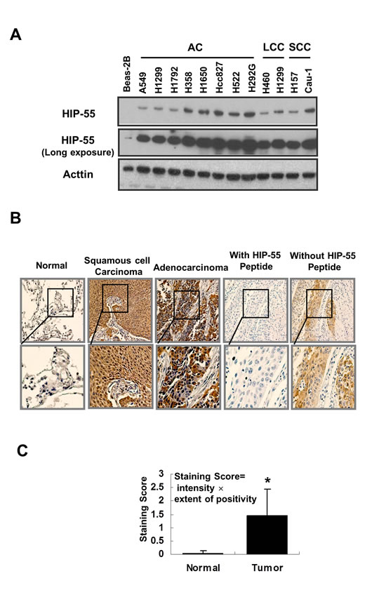 HIP-55 is upregulated in lung cancer cells and specimens lung cancer patients.